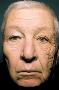Mans Face with unilateral dermatoheliosis